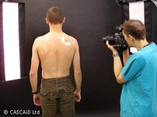 A woman, wearing a blue surgical uniform, is standing and looking into a camera. In front of her, a man is standing with his back facing the camera. He is not wearing a top, and there are some pen markings on his back.